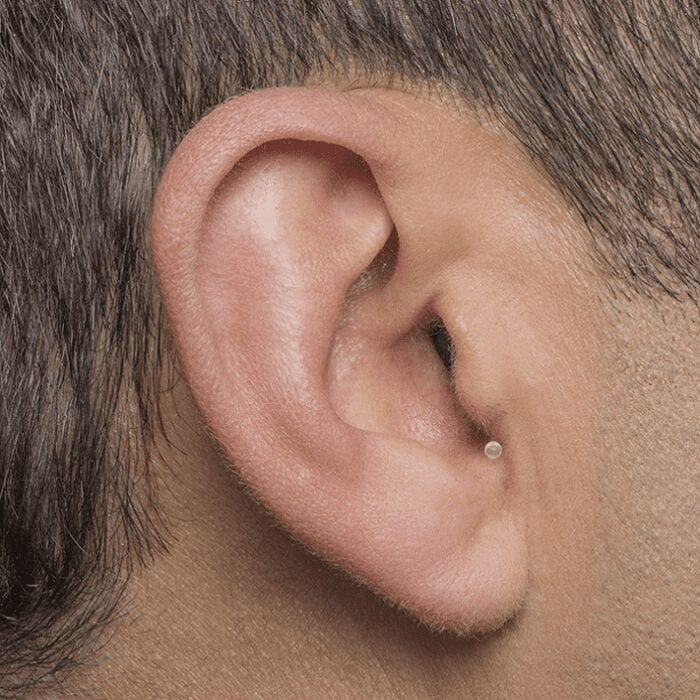 Invisible-In-Canal (IIC) Hearing Aid